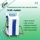 Professional IPL Hair Removal in Beauty Salon N5b