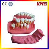 Hot Sale China Cheap Artificial Teeth Model