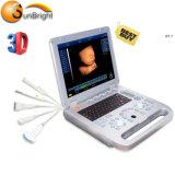 Best Price Clinic Medical Ultrasound Device 3D Ultrasound