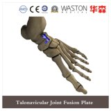 Talonavicular Joint Fusion Plate