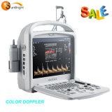 Sun-906W Laptop Portable 2D PC-Based Ultrasound Cheap Color Doppler