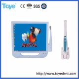 5.0 Mega Pixe Dental Intra Oral Camera