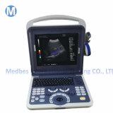Hospital Diagnosis Equipment Portable 4D Color Doppler Ultrasound Scanner M-K2