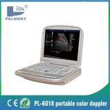 Pl-6018L Laptop Color Doppler and Portable Color Doppler