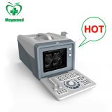My-A001A Medical Equipment Portable B Ultrasound Scanner Price