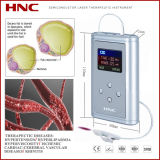 Rhinitis Laser Treatment Instrument (HY05-A)