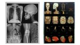 Low Fog 8 X 10 Inch Blue Pet Inkjet Medical X Ray Film for Epson Printer