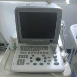 12 Inch LED Ultrasound Scanner for Medical Use