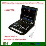 2018 Hot-Selling Best Price Portable 3D Ultrasound Scanner (MSLCU11V)