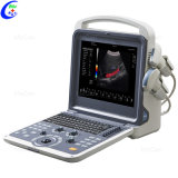 Portable Ecografo 4D Color Doppler Ultrasound Machine, Portable Echo Ultrasound Scanner
