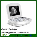 Cheap Digital Portable USB Ultrasound Scanner Mslpu28