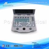 Handheld Laptop Black White Portable Ultrasound Scanner Price