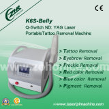 Mini Q-Switch Portable Laser Tattoo Removal Machine (K6S-Belly)