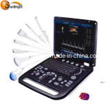 Wholesales Price Doppler Ultrasound 4D Color Doppler Ultrasound Scanner