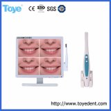 Dental USB Oral Camera with 17 Inch Monitor