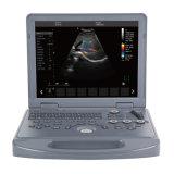 Cheapest Price Laptop Digital 15 Inch 2D 3D 4D Obstetric Gynecology Ultrasound Medical Scanner
