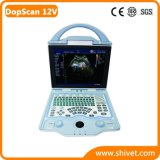 Portable Veterinary Color Doppler (DopScan 12V)