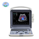 Medical Equipment 3D/4D Color Doppler Ultrasound Scanner