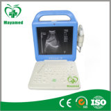 My-A003A Portable Ultrasound Machine Ultrasound Scanner Price