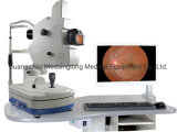 Auto Portable Digital Eye Fundus Camera Ffa Price Mslafc02