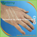Medical Adhesive Skin Wound Closure Strips