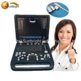 Cheapest Laptop 3D Ultrasound Animal Pregnancy Test Scanner Price