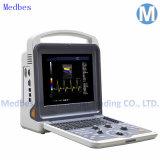 Vascular Cardiac Laptop Portable Color Doppler Ultrasound Scanner