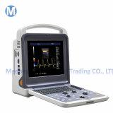 Hot Selling Ultrasound Machine Color Doppler/ Portable Ultrasound Scanner in Stock