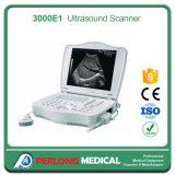 PT-3000e1 Portable Ultrasound Scanner Machine