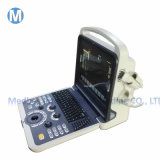 China Cheap Top Selling Excellent Color Doppler 3D 4D Laptop Ultrasonic Scanner Portable Ultrasound Systems with Ce