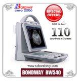 Medical Device Ultrasound Imaging System, Portable Ultrasound Scanner, Ultrasound System, Diagnostic Ultrasonic Imaging System, Good Price