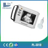 Handheld Ultrasound Scanner Price for Obstetrics and Gynecology Examine