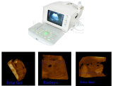 Ce Approved 10 Inch Portable 3D Ultrasound Scanner (RUS-6000A) -Fanny