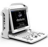Full Digital Portable B/W Ultrasound Scanner with Pw Chison Eco3 Expert