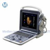 Medical Equipment Portable Color Doppler Ultrasound Scanner