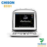 Medical Chison Eco1 China Portable Ultrasound Scanner