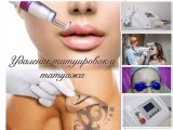 Sincoheren Q-Switch ND YAG Mini Laser Sr Tattoo Removal