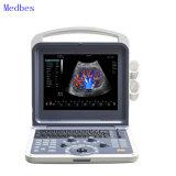 Diagnosis Equipment Color Doppler Portabel 3D/4D Ultrasound Scanner