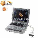 Cheap New Digital 3D Medical Portable Baby Ultrasound Equipment