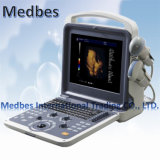 Cardiac/Vascular/Ob/Gyn Portable 3D 4D Echo Color Doppler Ultrasound Scanner M-K2