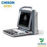 Chison Ultrasound Eco1 Cost Effective Black and White Ultrasound 2D Portable Ultrasound Machine Price