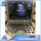 Usc60plus Hospital Diagnostic Full Digital 4D Color Doppler Ultrasound Scanner Price