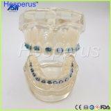 Dientes de cerámica ortos Hesperus modelo del corchete