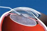 Solução Viscoelastic do gel de Hyaluronate do sódio de Singclean para a cirurgia ophthalmic
