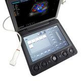 La FDA aprobó el Doppler Color 4D portátil de ultrasonido a bajo coste