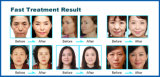 pelle termica di 20MHz rf che stringe strumentazione (FDA di iso del CE)