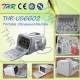 Ökonomischer Laptop-beweglicher Ultraschall-Scanner (THR-US6602)