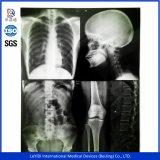 Bleu médical Leyidi sensibles film à rayons X