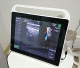 Máquina do ultra-som de Doppler da cor da tela de toque de 15 polegadas