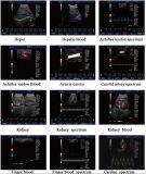Abdomen-Farben-Ultraschall-Scanner-Ausrüstungs-Ultraschall